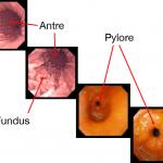 estomac-antre-pylore-fundus